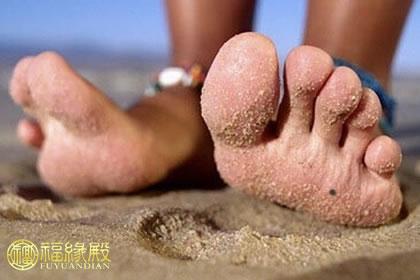 痣相解析:脚底长痣代表什么?