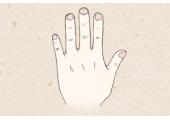 什么是假川字掌 如何跟真断掌区别