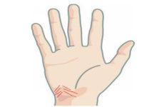 小拇指短的女人有什么说法 具体有什么影响